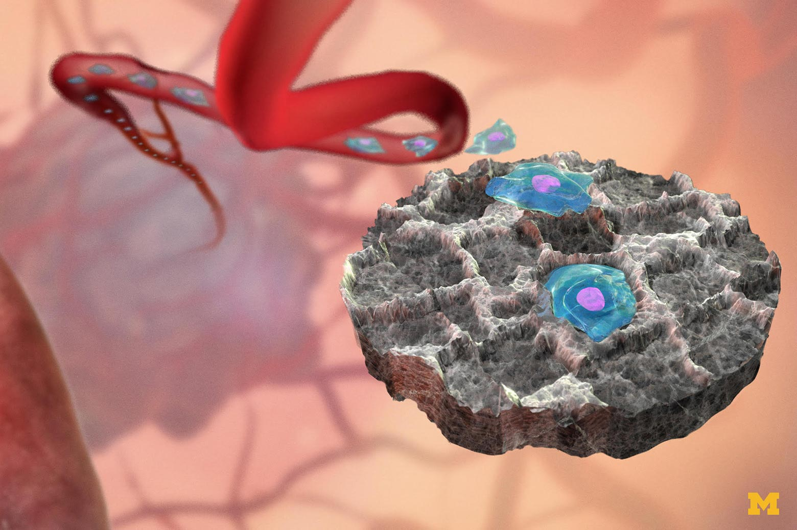Illustration showing how the device attracts cancer cells