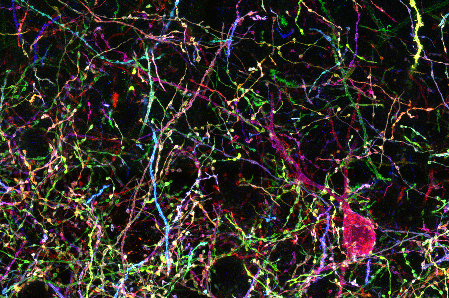 A multicolored web neurons, all long strands connecting rounder cell bodies