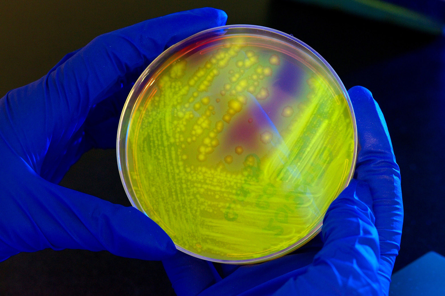 A researcher holds a petri dish containing clostridium difficile bacteria.