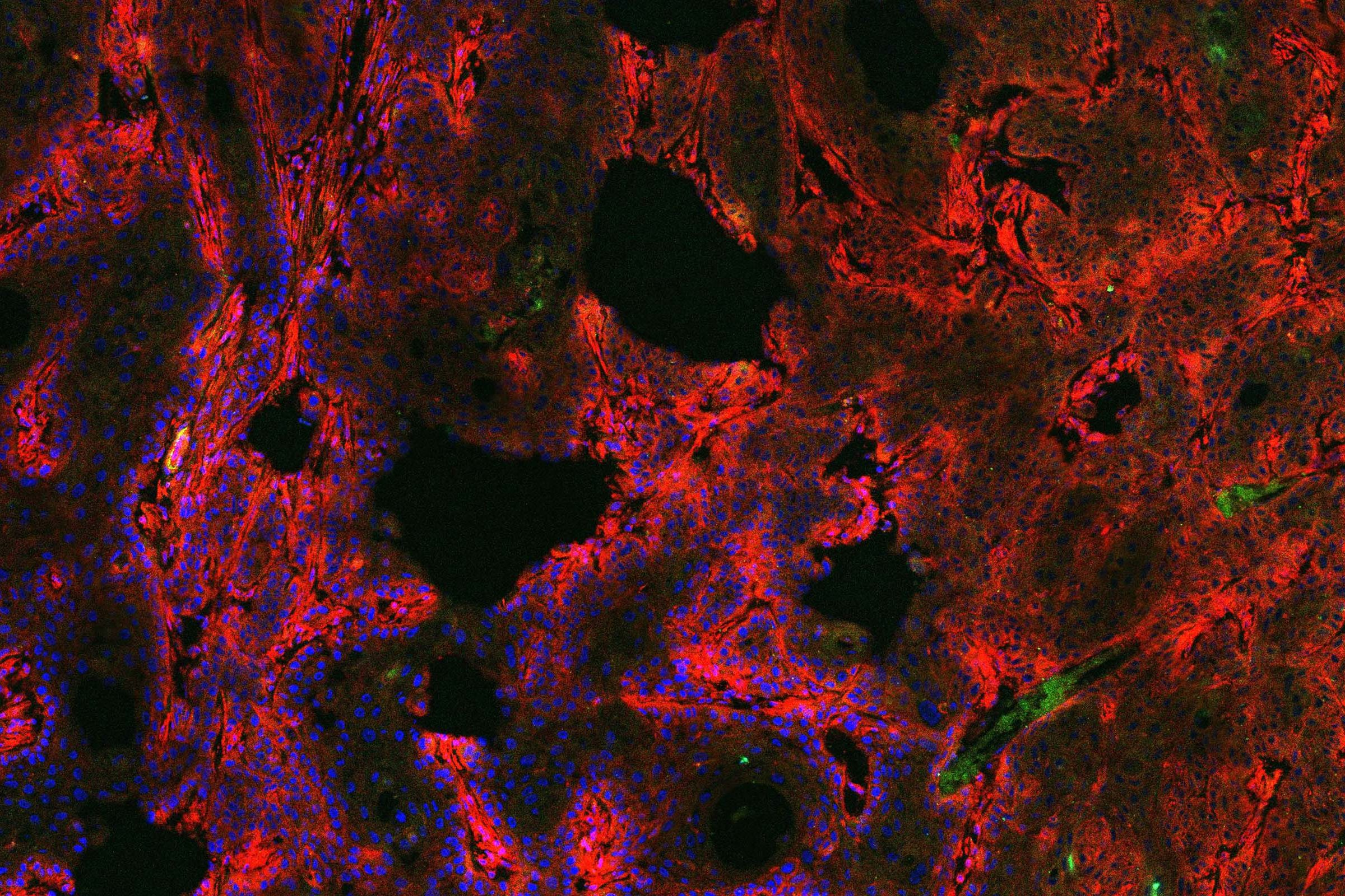 A microscopic image of a human tumor xenograft that glows red and blue from fluorescent dyes.