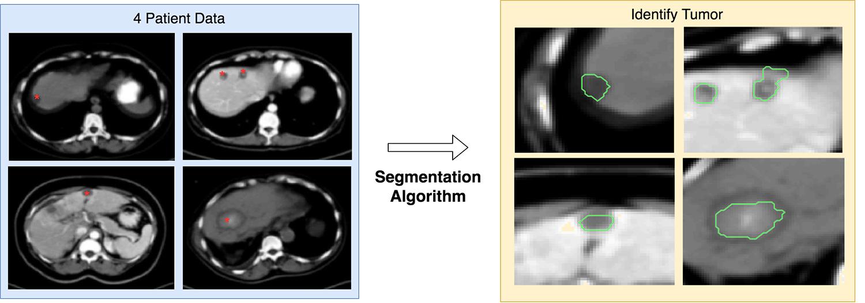 identifying tumors