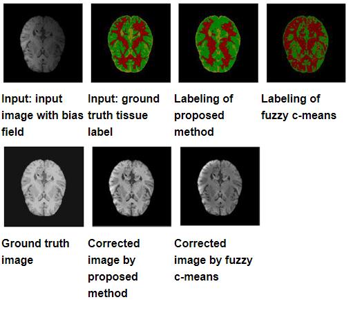 brain imaging comparison