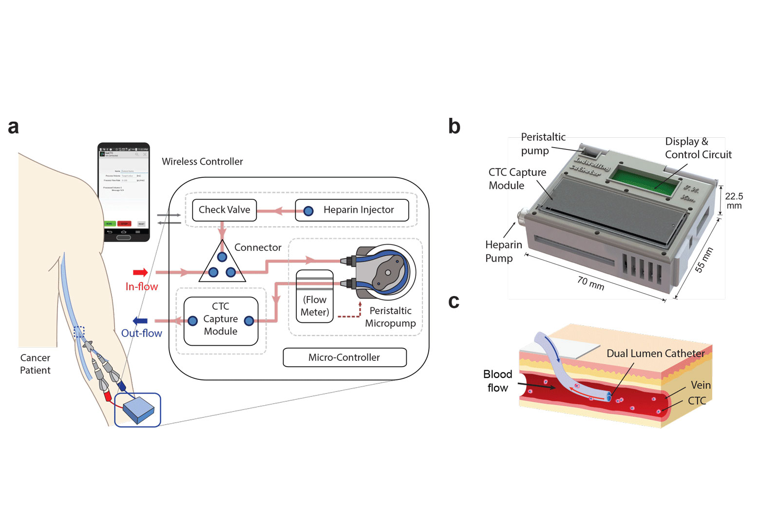"""Biopsy alternative: """"Wearable"""" device captures cancer cells"""