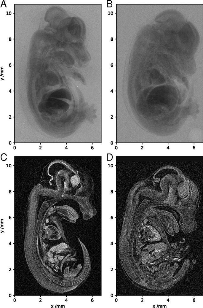 mouse embryo scans