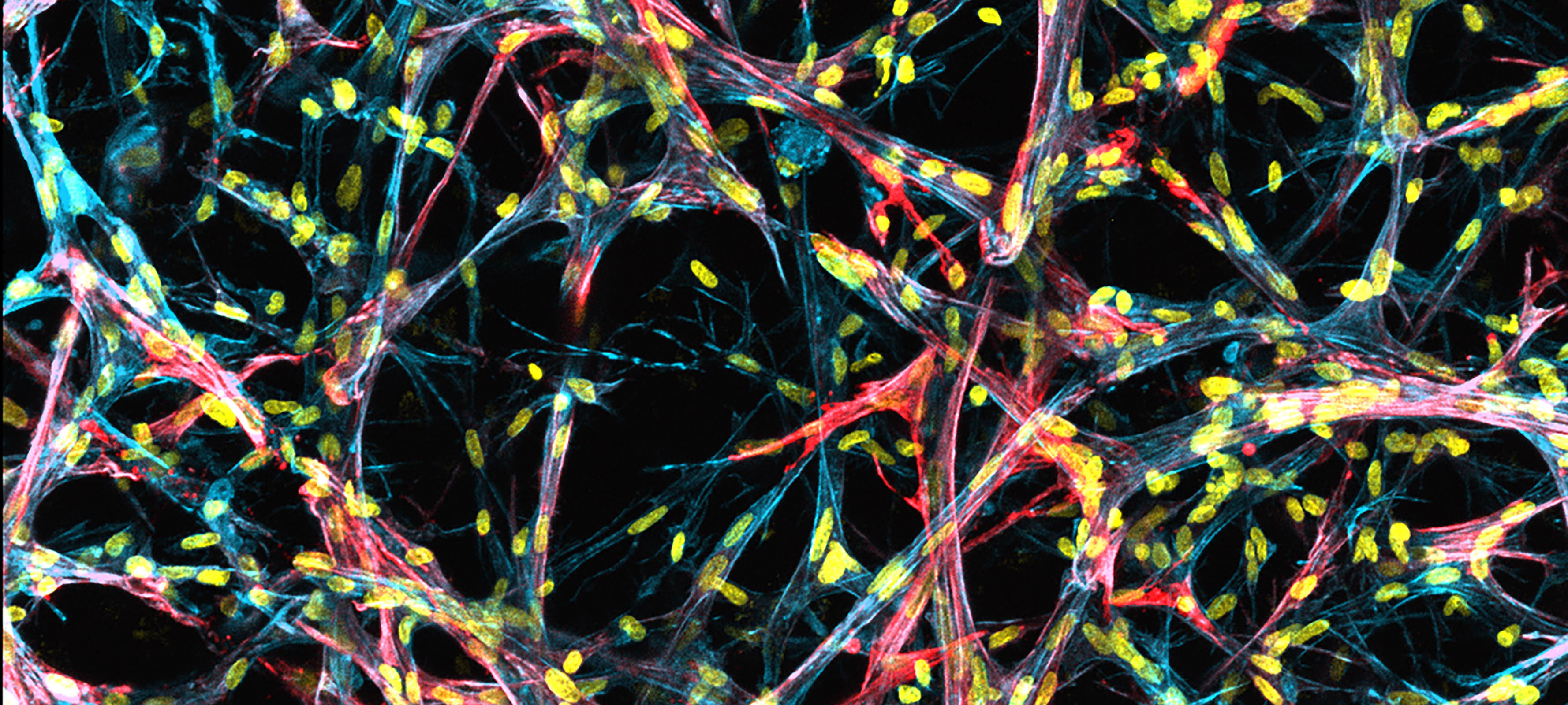 Myofibroblasts can be seen accumulating in the 3d lung connective tissue model even in soft conditions mimicking a healthy lung. Image is stained for cytoskeleton (blue), cell nuclei (yellow), and a marker for myofibroblast activation (alpha-smooth muscle actin, red). Credit: Baker Lab.