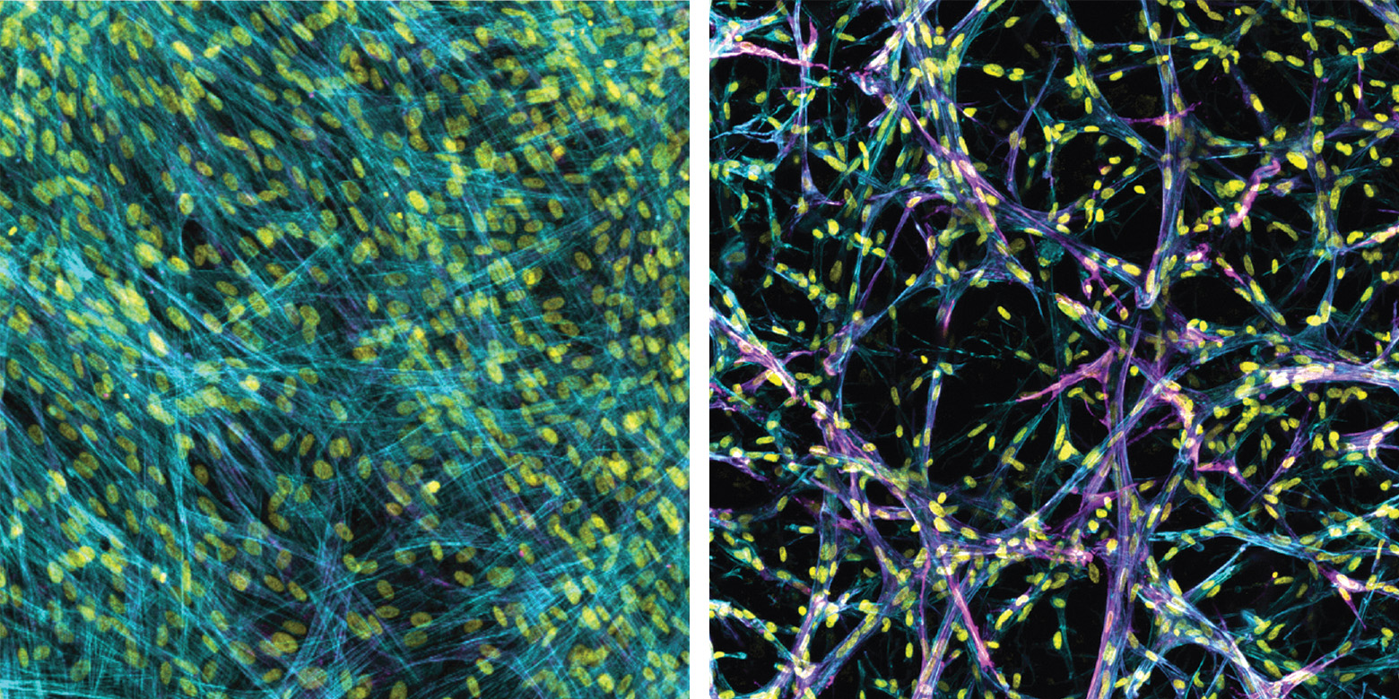 In line with prior work, myofibroblasts fail to accumulate in soft 2D settings (left). In the new 3d model (right) the myofibroblasts (magenta) accumulate, even in soft conditions that mimic a healthy lung. Images are stained for cytoskeleton (blue), cell nuclei (yellow), and a marker for myofibroblast activation (alpha-smooth muscle actin, magenta). Credit: Baker Lab.